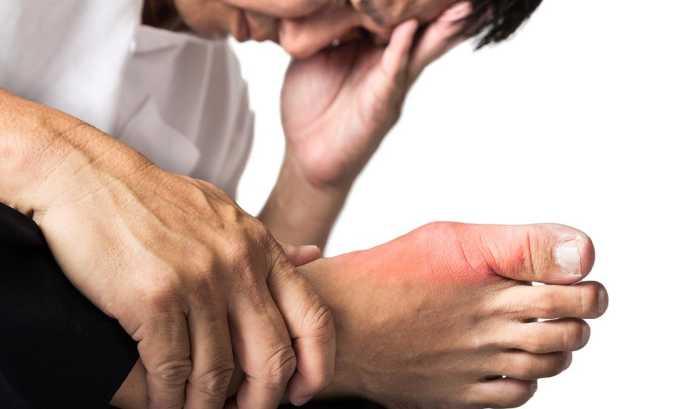Применения боровой матки помогает снять симптомы подагры
