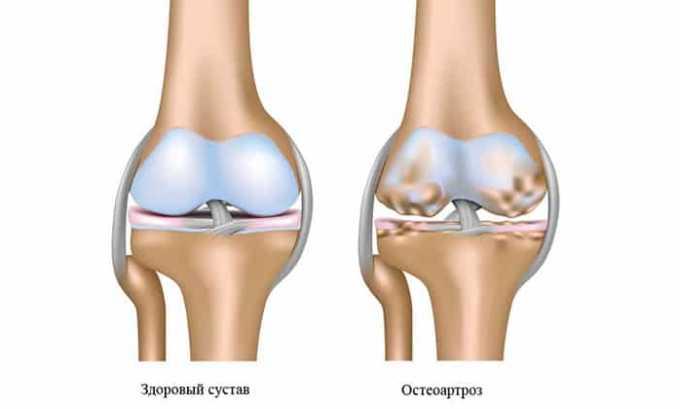 Вольтарен показан при остеоартрозе