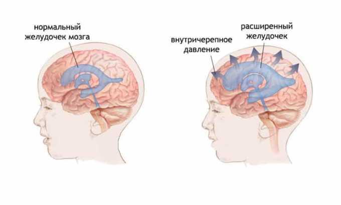 Препарат применяется при повышенном внутричерепном давлении
