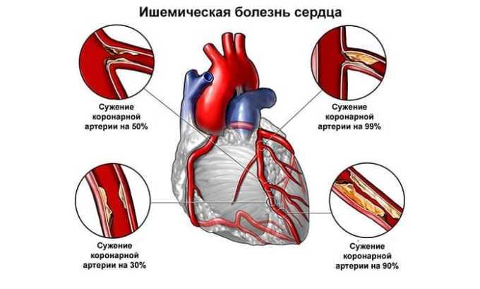 Терапия больных с ишемической болезнью сердца лучше проводить в стационарных условиях под строгим наблюдением врачей