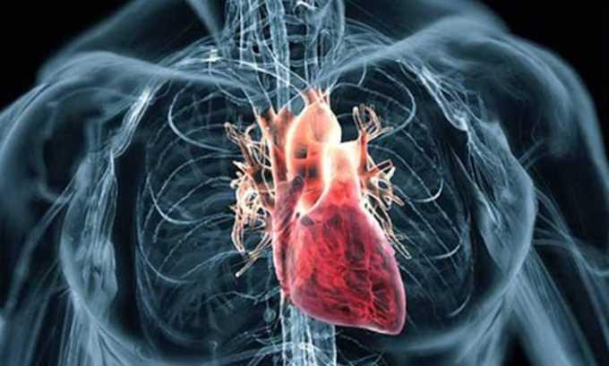 Фуросемид применяют при сердечной недостаточности
