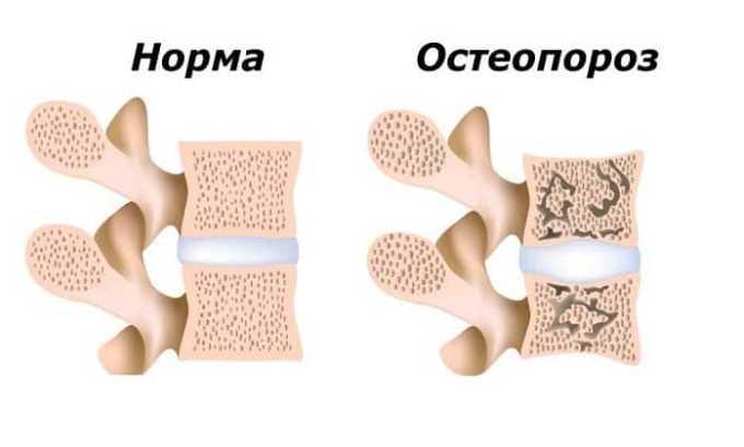 При остеопорозе принимать средство следует с осторожностью