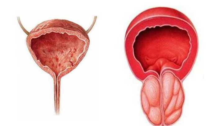 При воспалительных процессах в органах малого таза (простатит, цистит и т.д.) применяют препарат Вольтарен 100