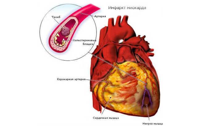 Препарат может быть назначен при инфаркте миокарда