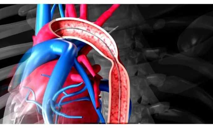 Не рекомендуется принимать лекарство при сужении аорты