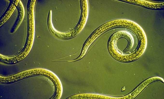 В выделительной системе людей, в т. ч. и в пузыре, могут жить нематоды (филярии) длиной до 45 см