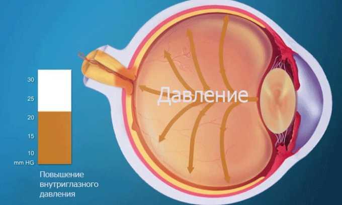 После введения импланта может развиться повышение внутриглазного давления