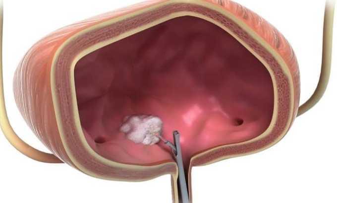 Эндоксан может быть выписан для лечения рака мочевого пузыря