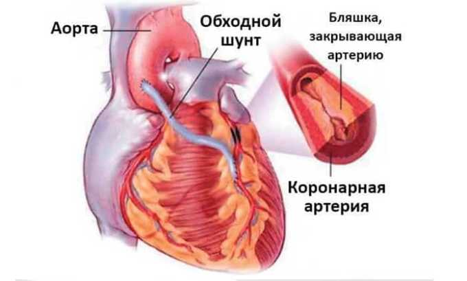 К абсолютным ограничениям препарата относят недавно сделанное аортокоронарное шунтирование