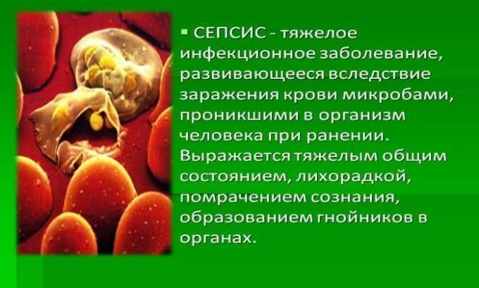 Для лечения сепсиса назначают антибиотик Амосин