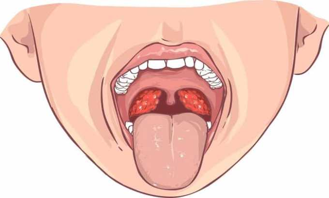 Во время приема препарата Макмирор ощущение горечи на корне языка