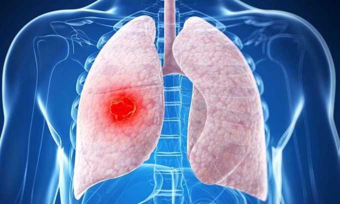 Прием препарата противопоказан при нарушении дыхательной функции вследствие недавнего приема аспирина