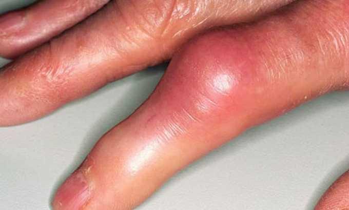 Моноприл относительно противопоказан при подагрическом артрите