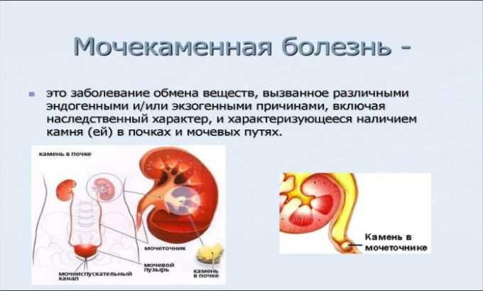 Препарат применяется при мочекаменной болезне