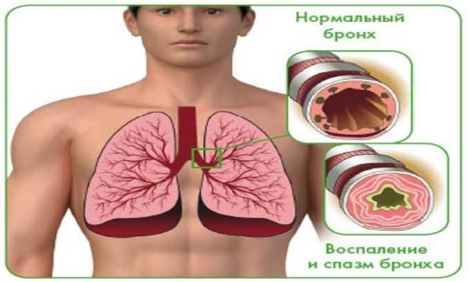 При передозировке возможны появление спазмов дыхательных путей