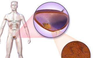 Рак мочевого пузыря: симптомы, прогноз и лечение