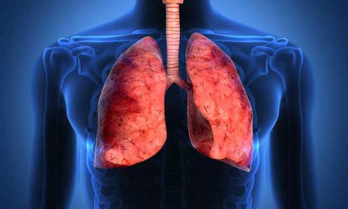 Средство применяется в лечении острого воспаления легких