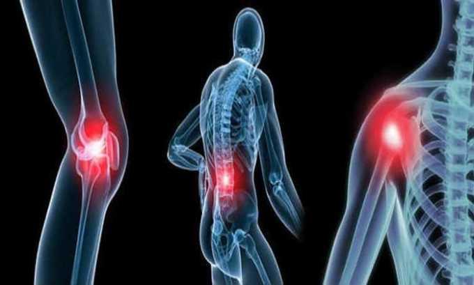 При ревматоидном артрите помогает Полькортолон