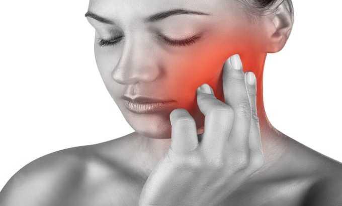 Нимулид принимают при зубной боли
