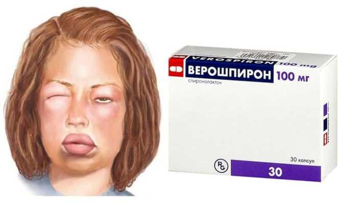 Для снижения отеков при длительном нефротическом синдроме Верошпирон выписывают в комплексе с фуросемидом и тиазидными диуретиками