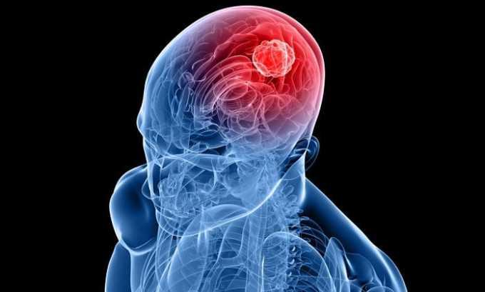 При отеке головного мозга часто назначается данное лекарственное средство