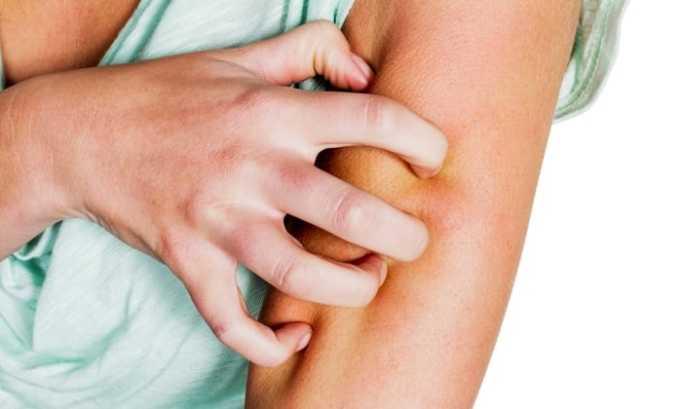 Одним из побочных действий является кожная сыпь, сопровождающаяся зудом