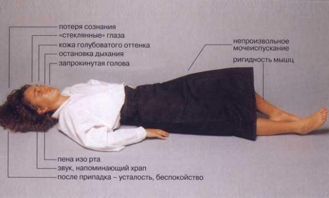 Препарат противопоказан при эпилепсии