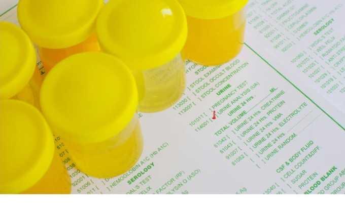 Клинический анализ мочи помогает выявить в урине наличие слизи, солей, белка, крови