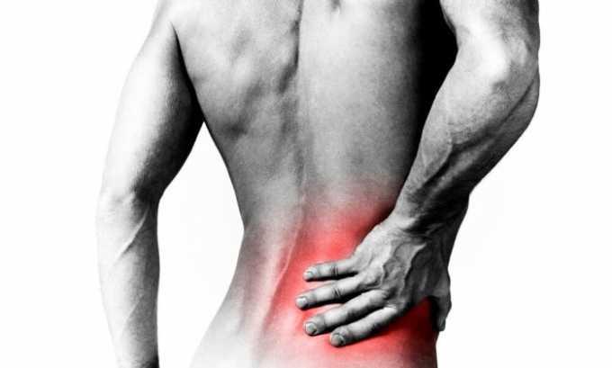 Ибупрофен назначают при боли в пояснице