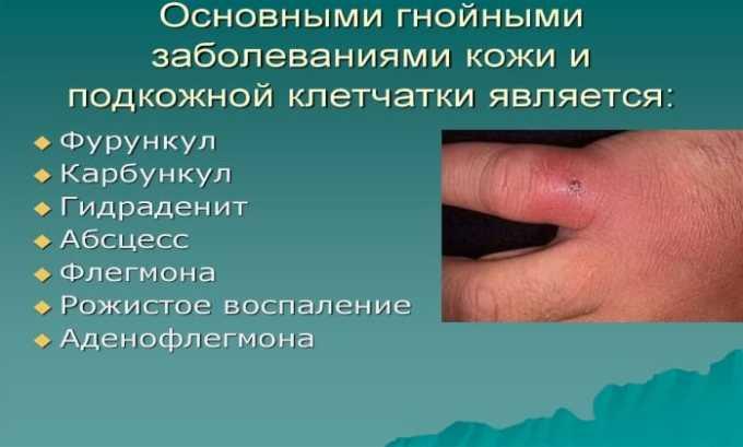 Препарат эффективен при инфекции кожи гнойного характера