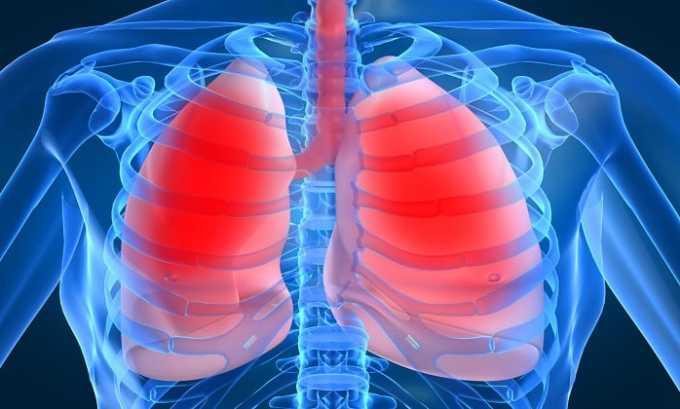 Хронические заболевания дыхательной системы - одно из противопоказаний к использованию компресса