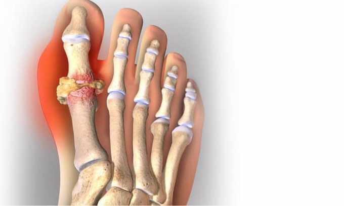 Во время купирования боли при подагре лечебный раствор оказывает больший эффект в сочетании с использованием нестероидных противовоспалительных средств