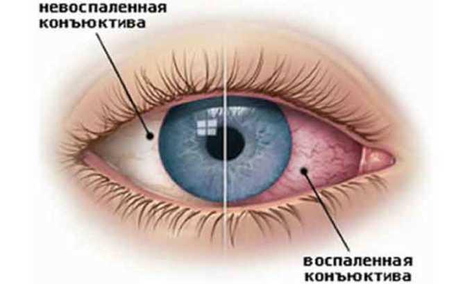 Лайфферон используется для терапии вирусного воспаления конъюнктивы