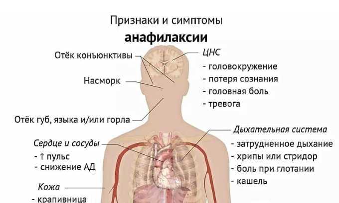 Терапевтический курс может спровоцировать развитие анафилаксии