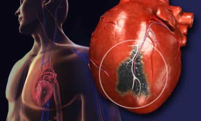К относительным противопоказаниям относят ишемическое поражение сердечной мышцы
