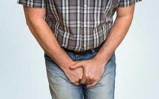 Причины появления цистита у мужчин