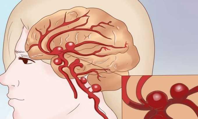 При приеме Аспирина с дозировкой 100 или 300 мг могут возникать побочные явления как кровоизлияние в мозг