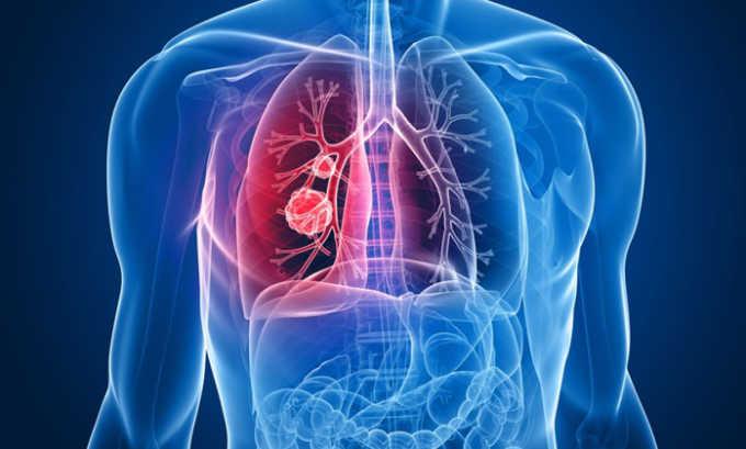 Метастатический мелкоклеточный рак легких является показанием к применению препарата