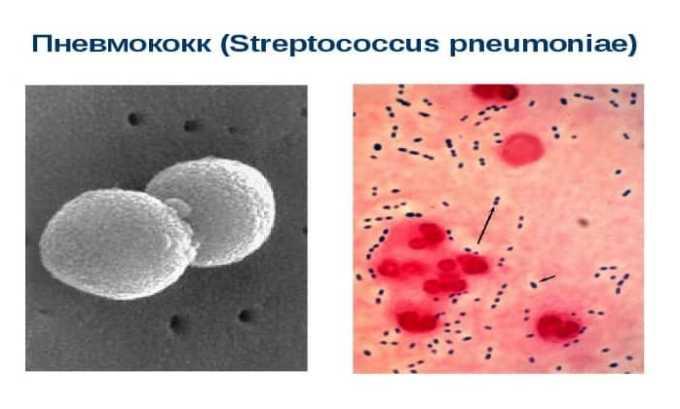 Средство активно по отношению к грамположительным аэробам streptococcus pneumoniae