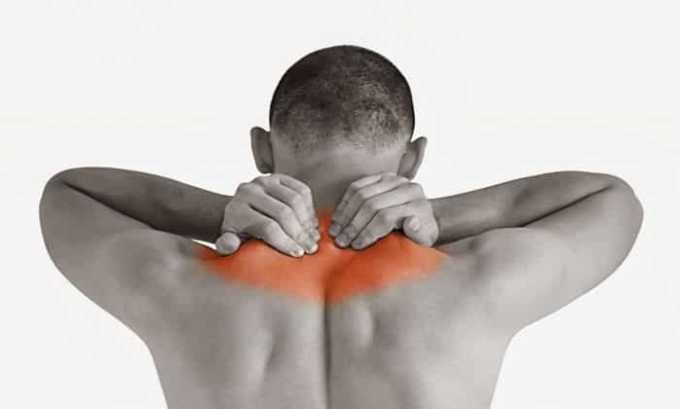 Применение суппозиториев Диклофенак позволяет купировать болевой синдром при миозите