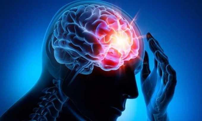 Фитоэстрагены, входящие в состав боровой матки помогают снять симптомы эпилепсии