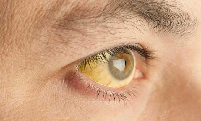 Во время лечения у пациента могут развиться побочные реакции в виде желтухи