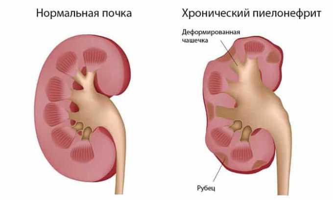 Антибиотик эффективно справляется с пиелонефритом