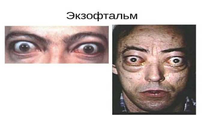 Побочными эффектами от применения глазной мази может быть экзофтальм
