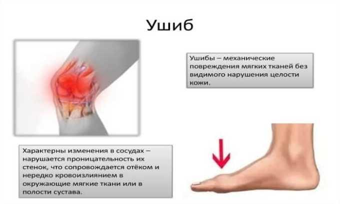 Ибупрофен назначают при ушибах и травмах