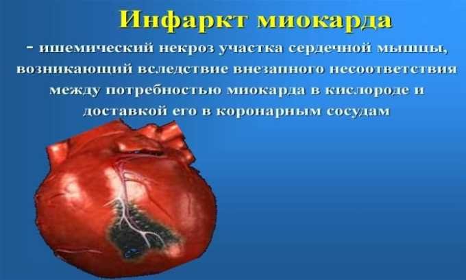 Аспирин часто назначают для профилактики инфаркта миокарда