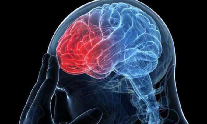 Черепно-мозговые травмы, сопровождающиеся нарушением микроциркуляции в головном мозге являются противопоказанием к применению препарата