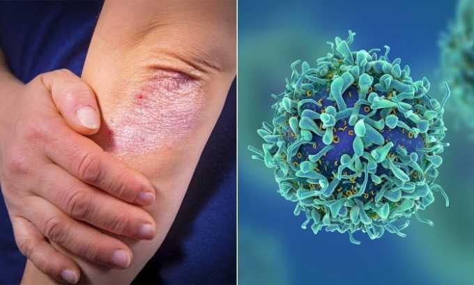 Препарат применяется при псориатическом поражении кожи