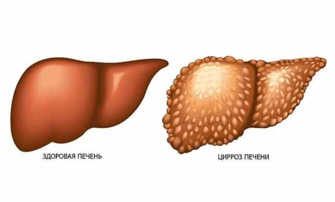 Верошпирон назначают при циррозе печени