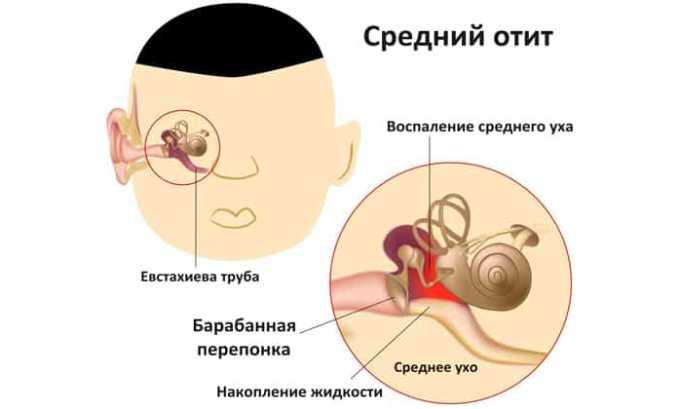Средний отит является причиной применения препарата